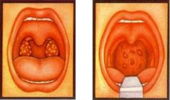 腺样体肥大对小孩的危害
