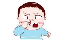 千万别小看鼻出血的危害