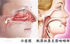 肥厚性鼻炎的危害是什么?