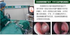 南京鼻窦炎是种什么病